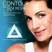 radiesse the lifting filler